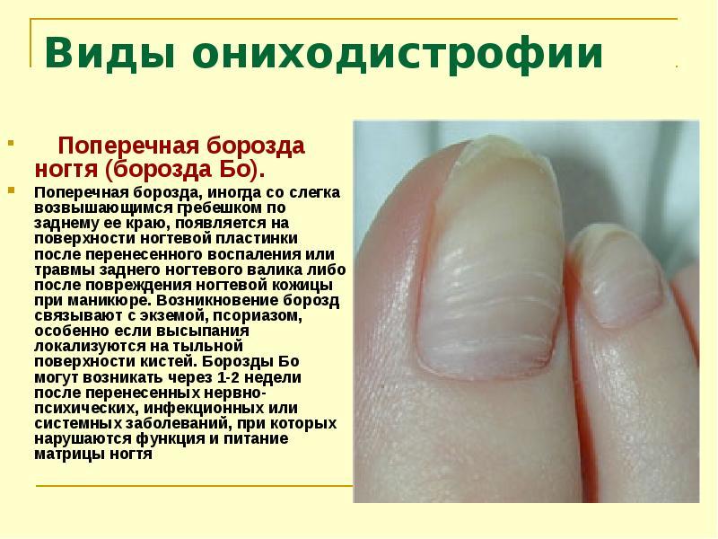 Болезни ногтей и описание