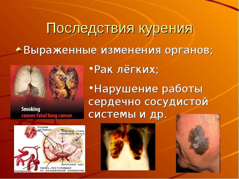 Доклад на тему вредные привычки курение