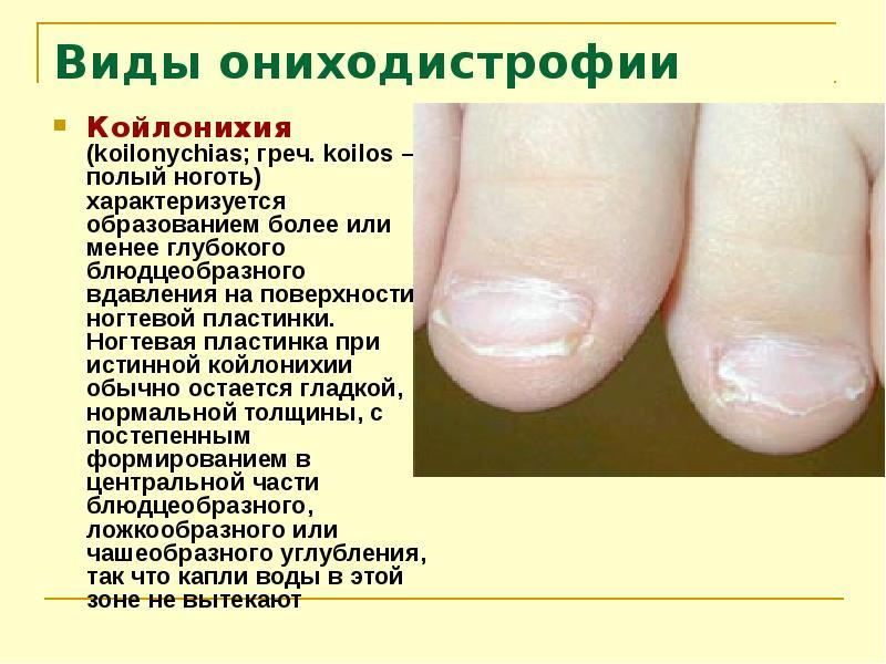 Заболевания ногтей у детей и описание