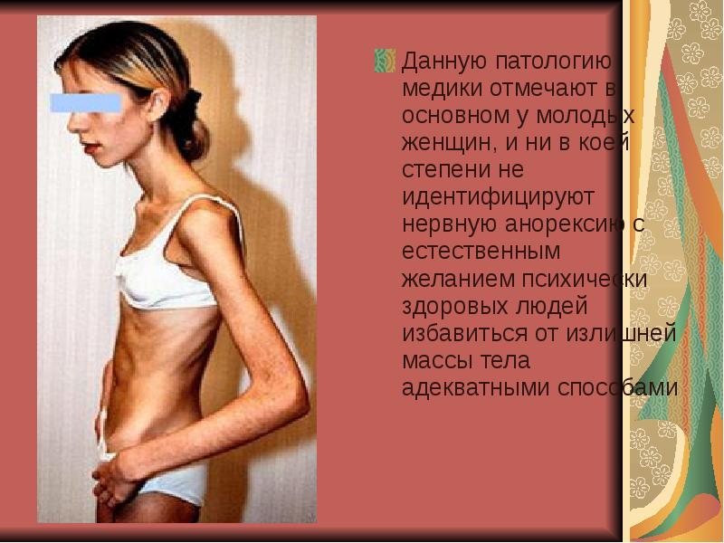 Истории про анорексию