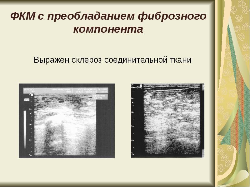 Фибрознокистозная мастопатия с мелкокистозным компонентом - Проверенный блог авторских иллюстраций