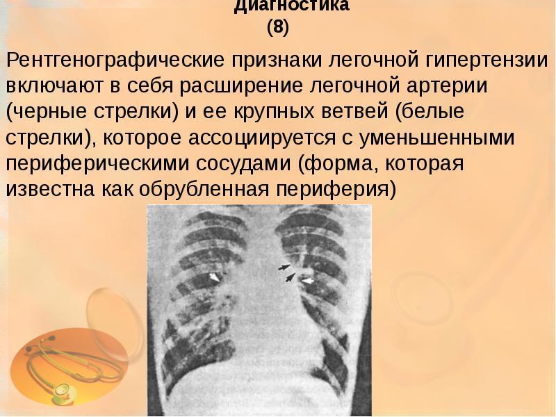Легочная гипертензия клиника диагностика лечение