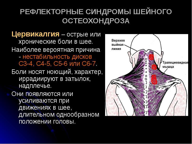 Корешковые боли при шейном остеохондрозе фото