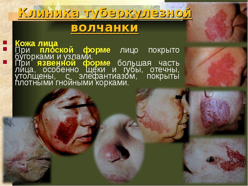 Туберкулёз кожи клиника