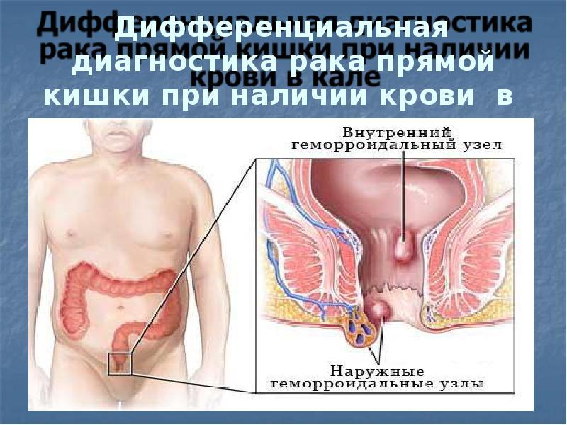 Энтерит — это инфекционное воспаление тонкой кишки, которое обычно вызывается лямблиями.