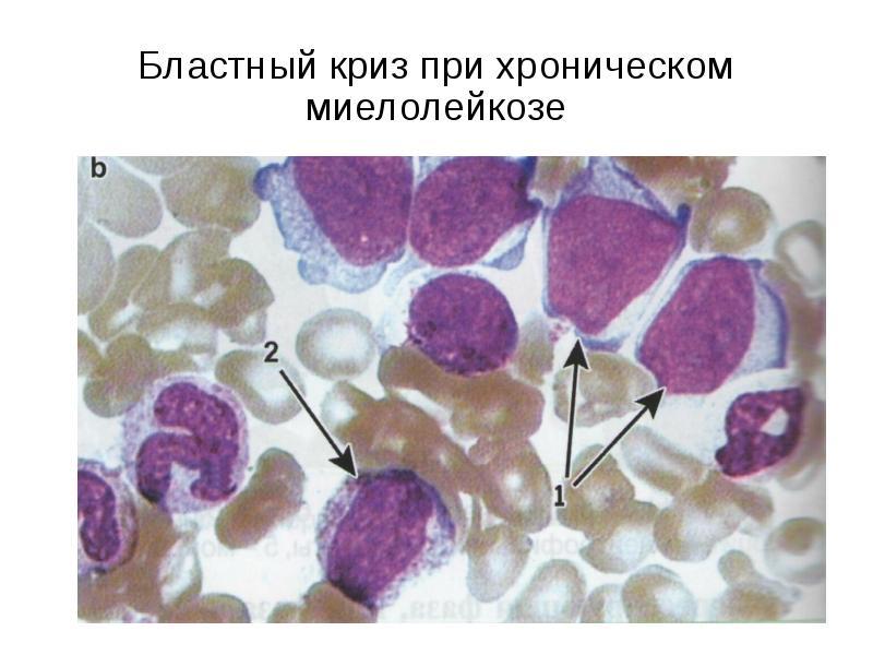 Хронический лимфолейкоз - симптомы болезни