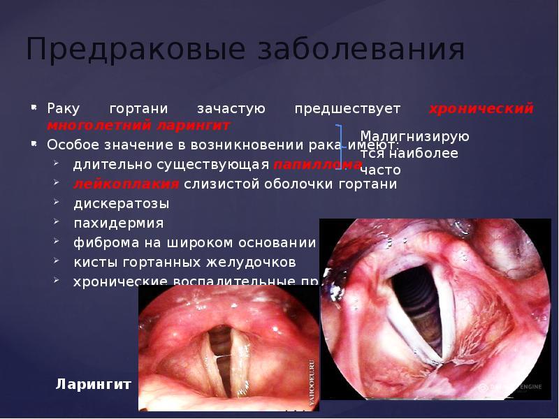 Рак гортани - презентация, доклад, проект