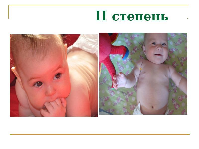 Рахит 2 степени детей лечение