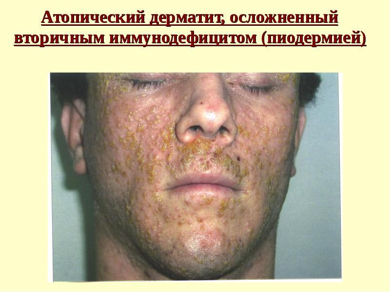 Острая форма атопического дерматита