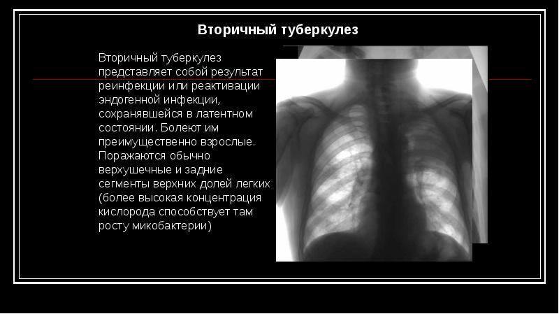 Туберкулез клиника диагностика профилактика