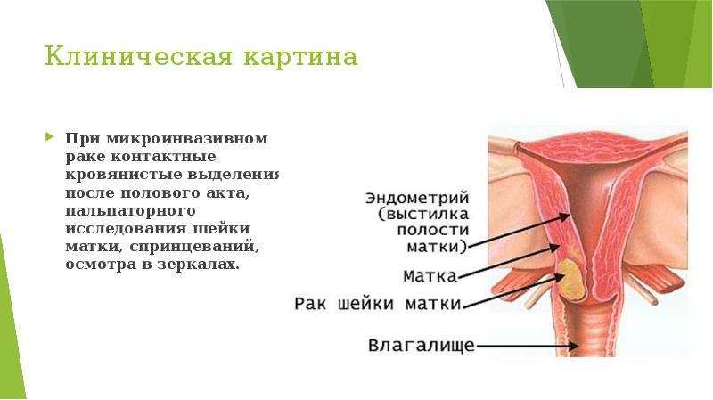 Рак шейки матки - презентация, доклад, проект