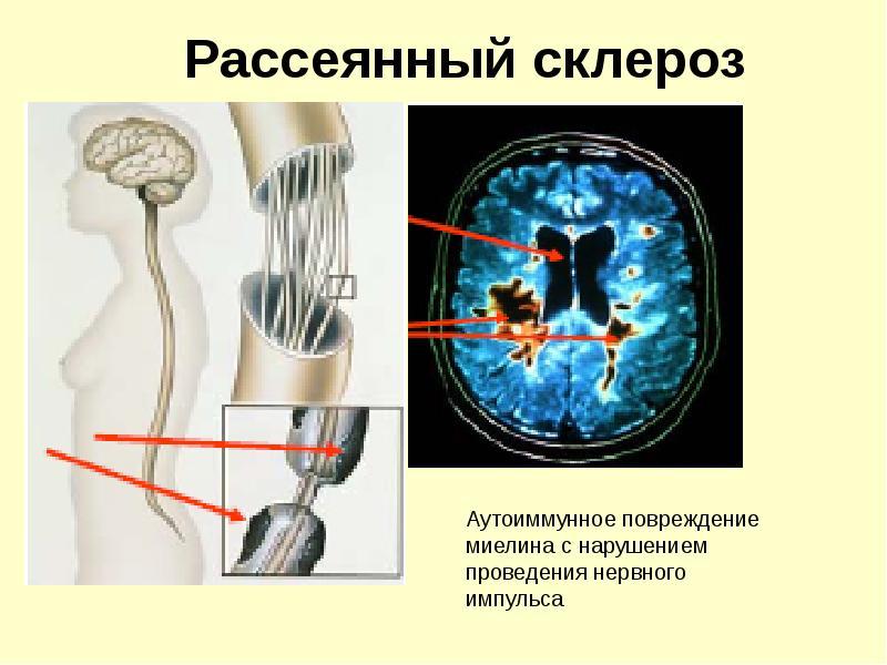 Особенности рассеянного склероза