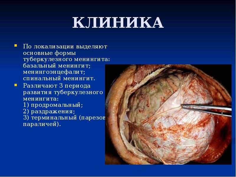 ћенингит клиника диагностика лечение