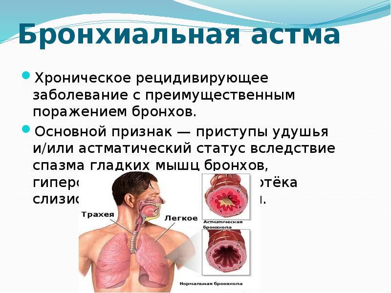 Следовательно, бронхиальная астма любой степени выраженности является показанием для тщательного мониторирования дыхательной функции с целью вовремя выявить и скорригировать прогрессирование заболевания.