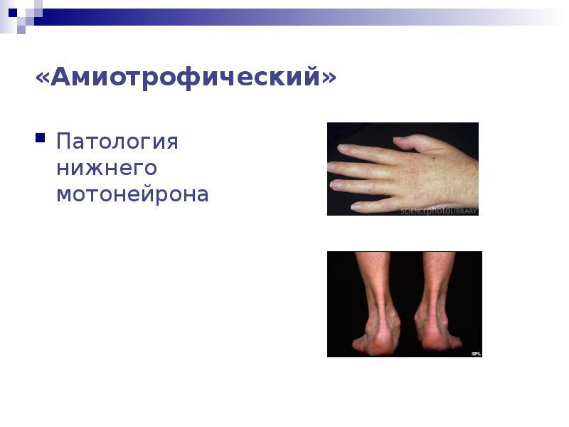 Болезнь мотонейрона симптомы