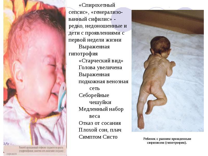 Симптомы внутричерепного давления у детей комаровский