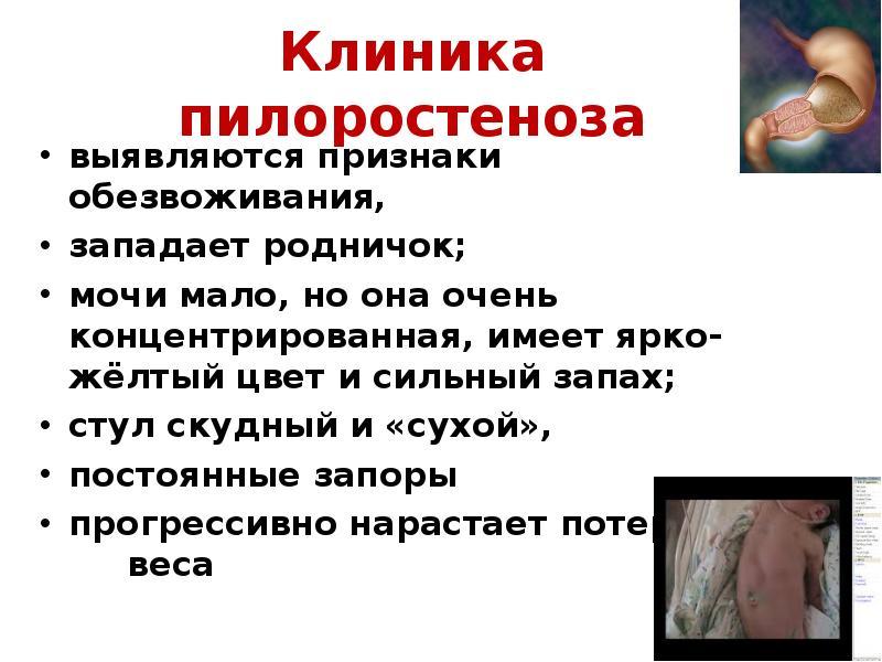 вакансии трудоустройство призгаки сильного обезвоживания у детей делать России