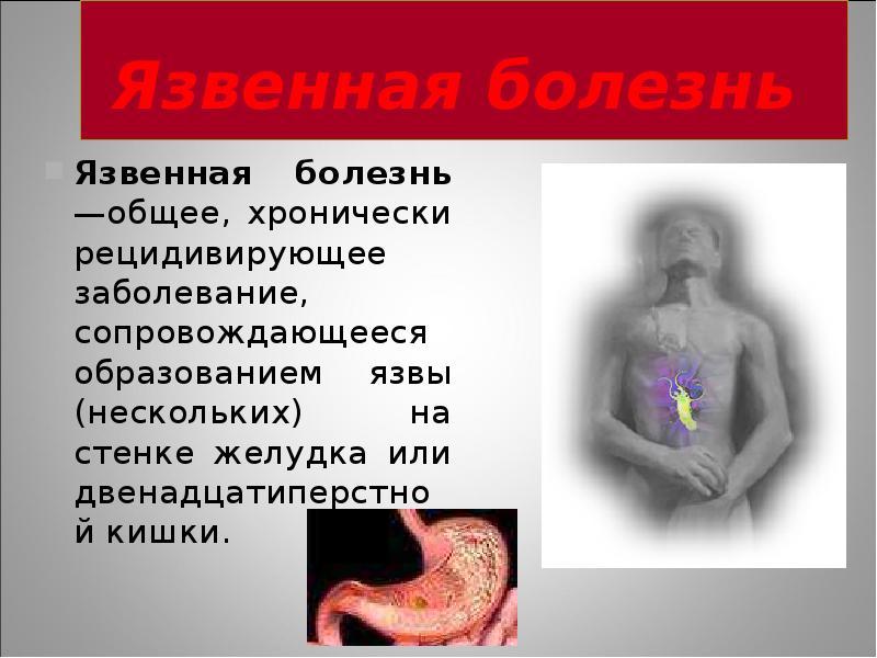 соус язвенная болезнь желудка реферат заместителя председателя
