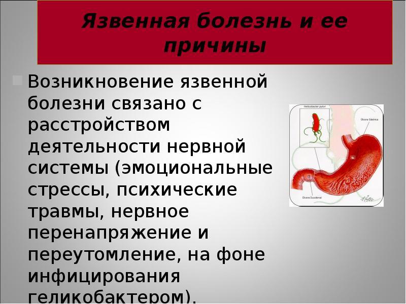 этикетки язвенная болезнь желудка реферат таковых