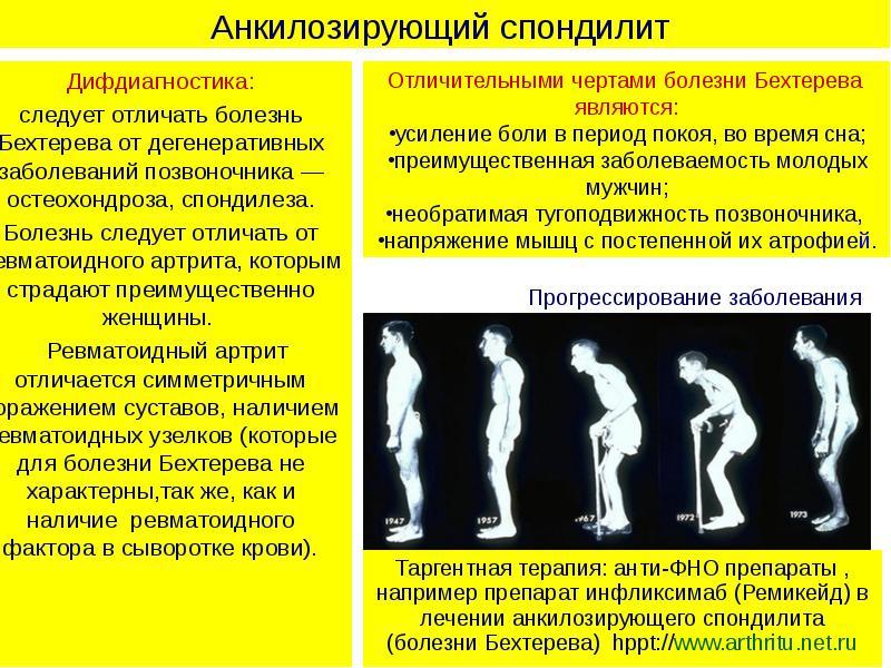Различия болезни бехтерева и остеохондроза