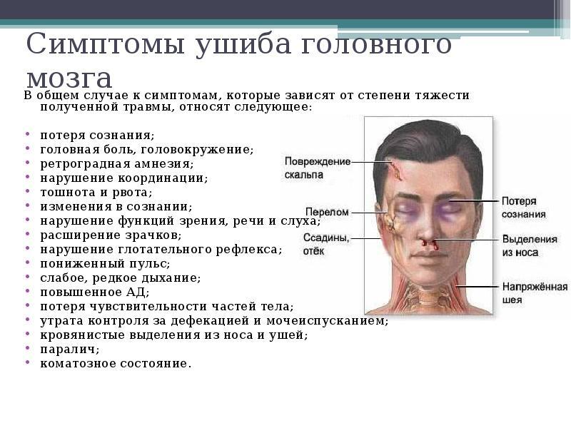 Сотрясение мозга симптомы последствия как проявляются