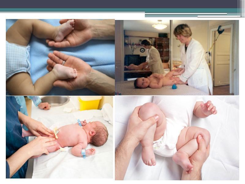 Физиотерапия при дисплазии тазобедренных суставов у детей