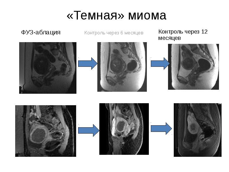 МРТ органов женского малого таза. Доброкачественные образования. Миома матки. ФУЗ-аблация - презентация, доклад, проект