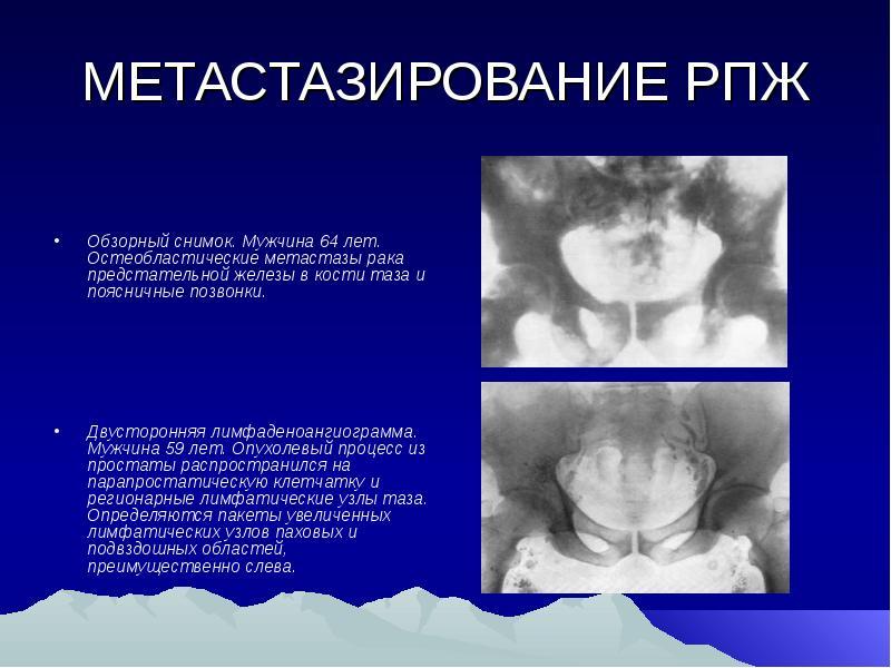 Рак простаты метастазы в малом тазе