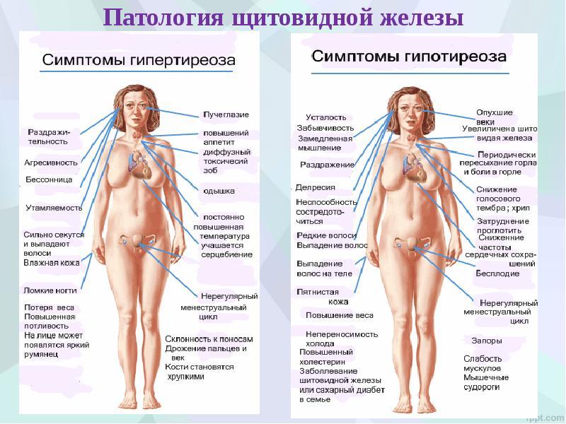 случае термобельем заболевания щитовидной железы симтомы лечение швы