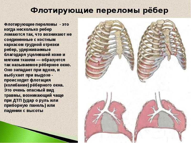 Как лечить поломанные ребра в домашних условиях