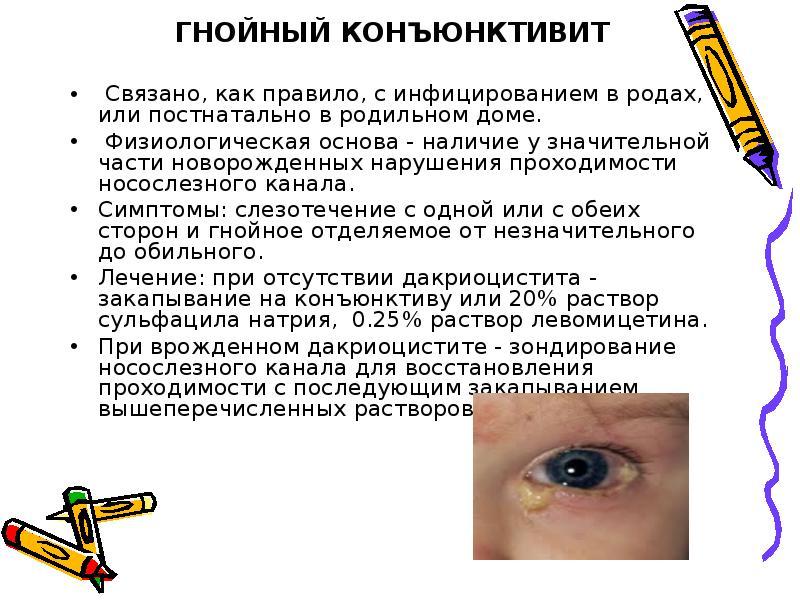 одним частым конъюнктивит детский симптомы и лечение двух