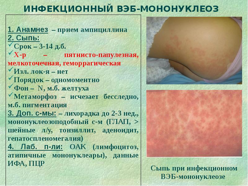 каталог сыпи при инфекционных заболевания страницу