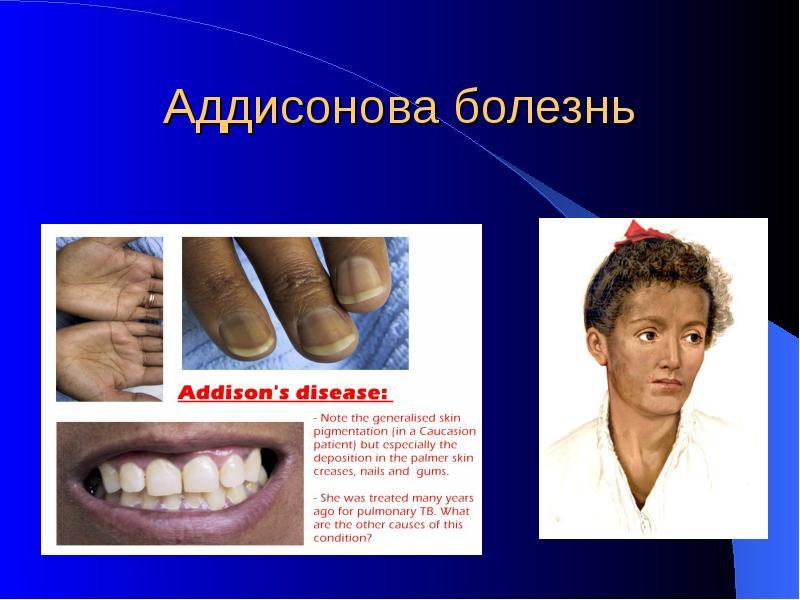 Аддисонова болезнь симптомы