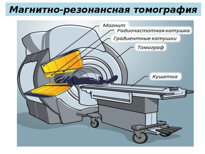 Ядерно магнитная резонансная томография