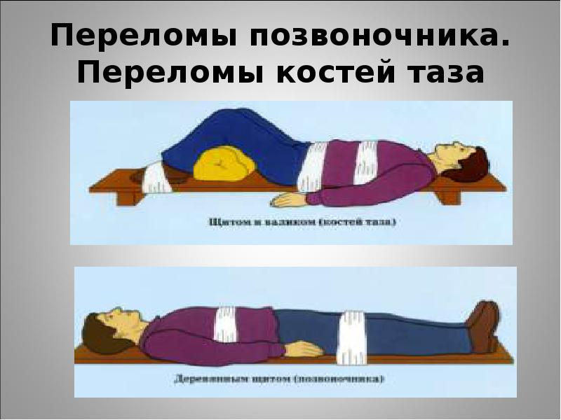 Медицинская помощь при переломе костей таза