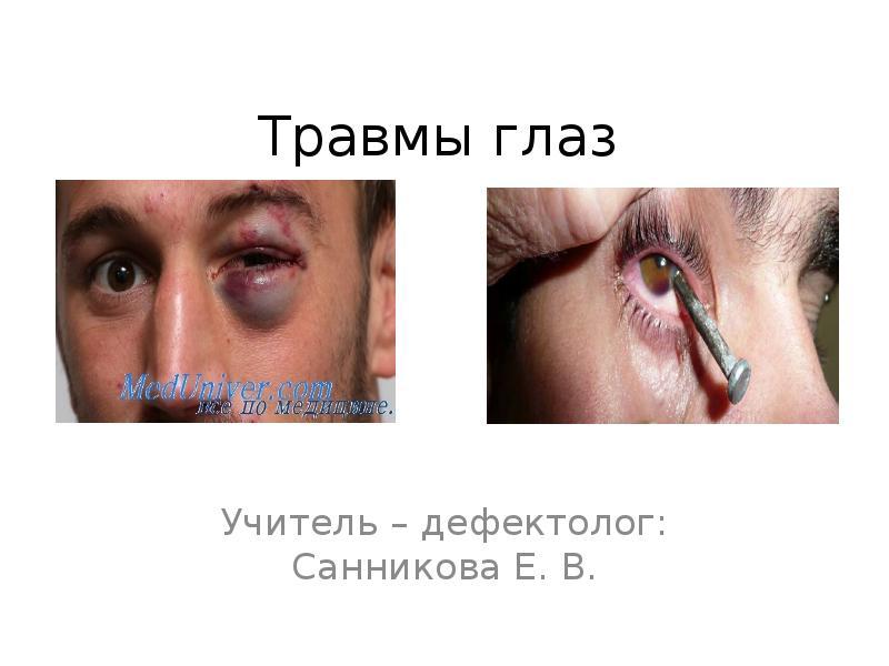 Доклад на тему травма глаза 2871