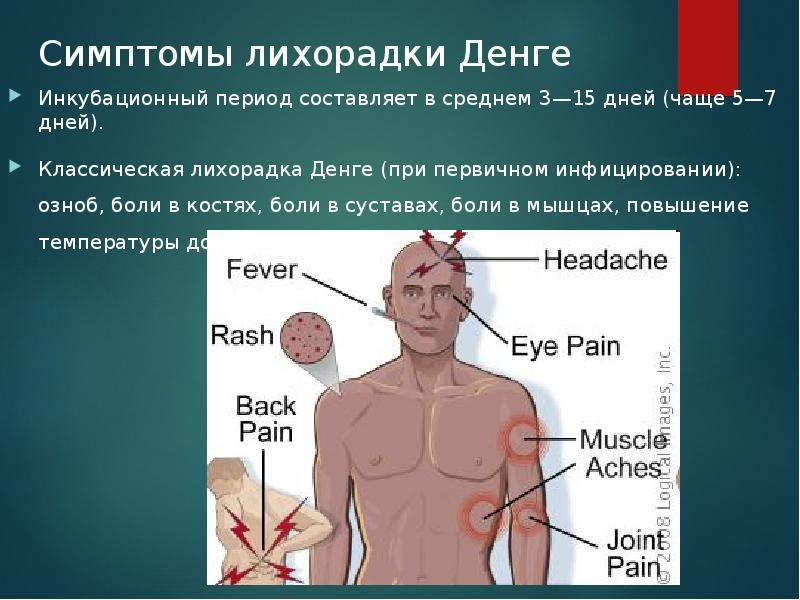 лихорадка денге в картинках шабаев его невеста
