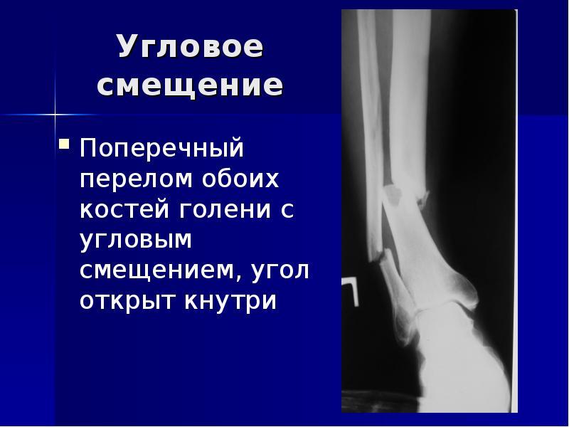 Диагноз перелом кости со смещением