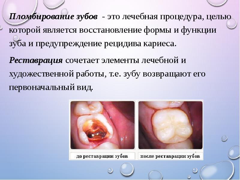 Пломбирование зуба или реставрация