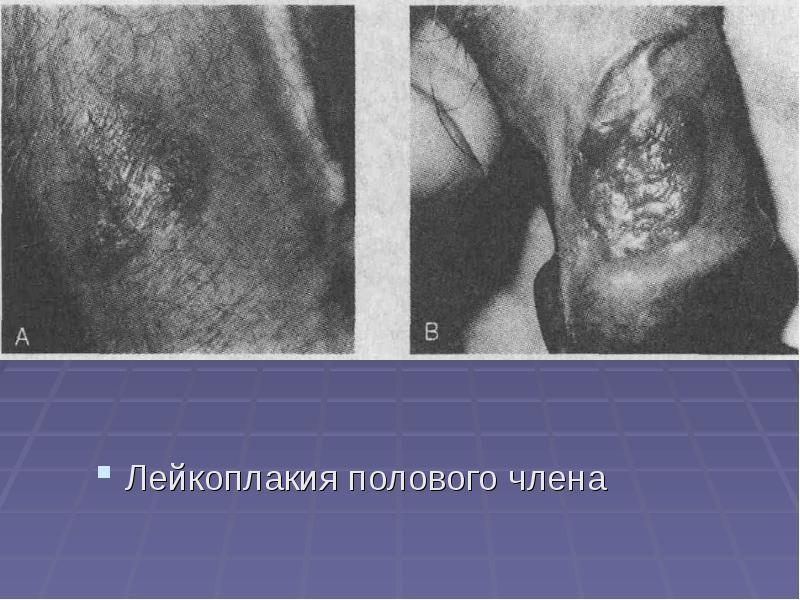 Лейкоплакия полости рта - презентация, доклад, проект