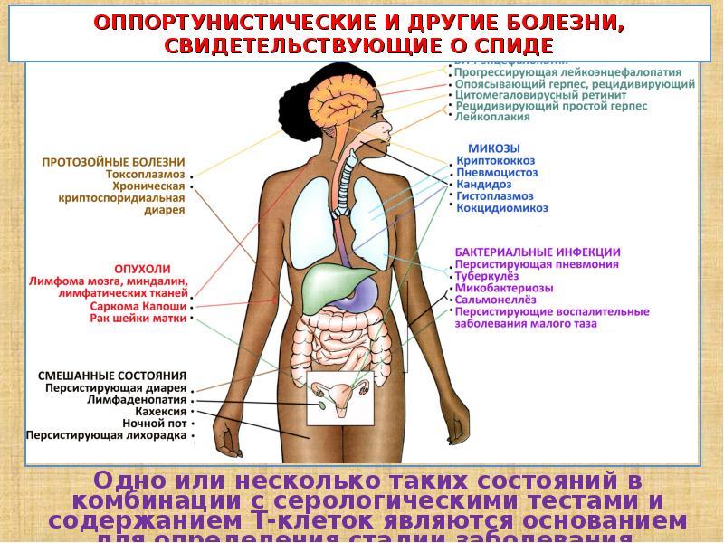 Симптомы болезни ночные