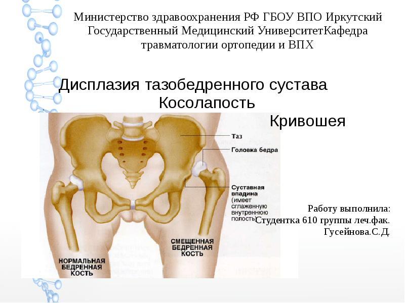 синдром дисплазии соединительной ткани суставов у ребенка