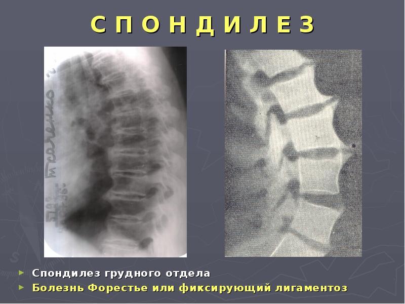 Болезнь форестье симптомы