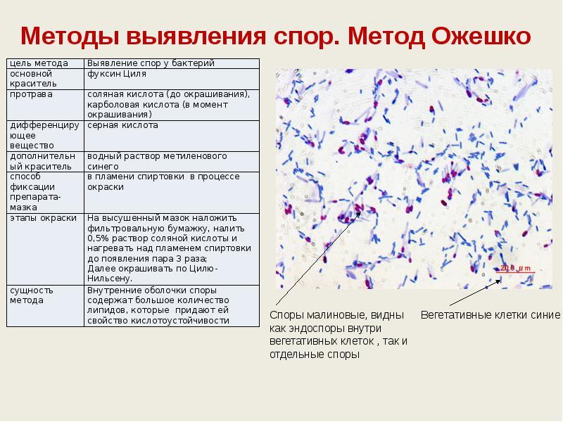 методы изучения споры бактерий узнайте, что
