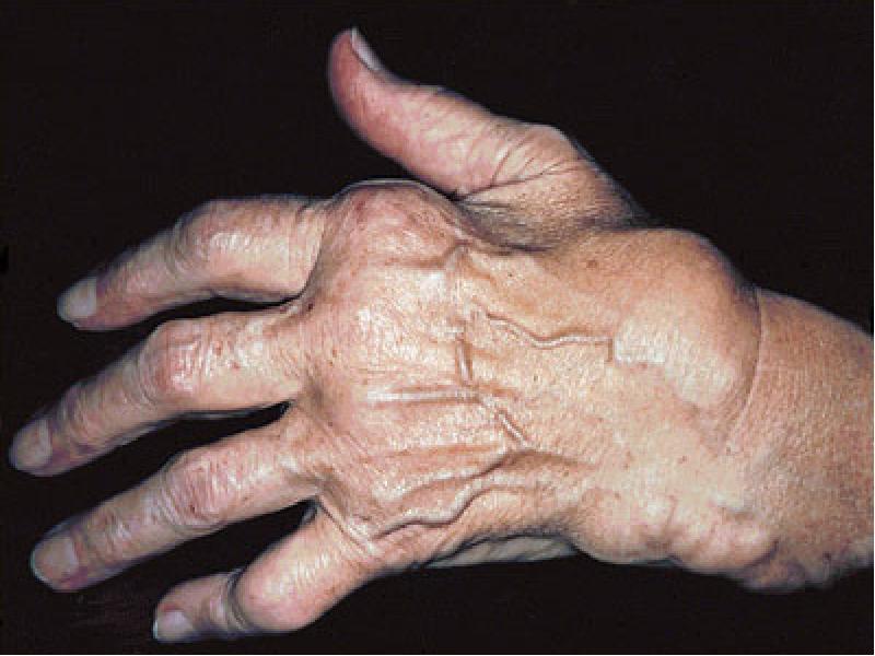 Иммунный артрит
