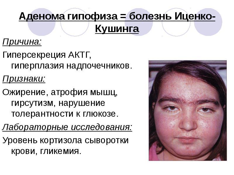 Болезнь гипофиза симптомы
