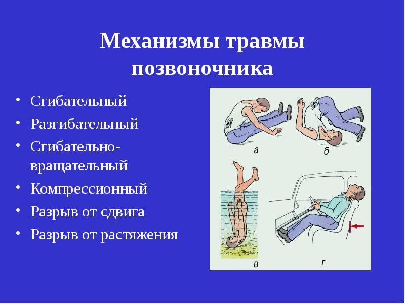 Травма позвоночника и спинного мозга презентация
