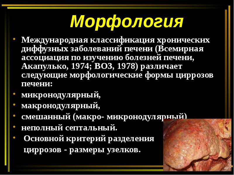 Хронические диффузные заболевания печени