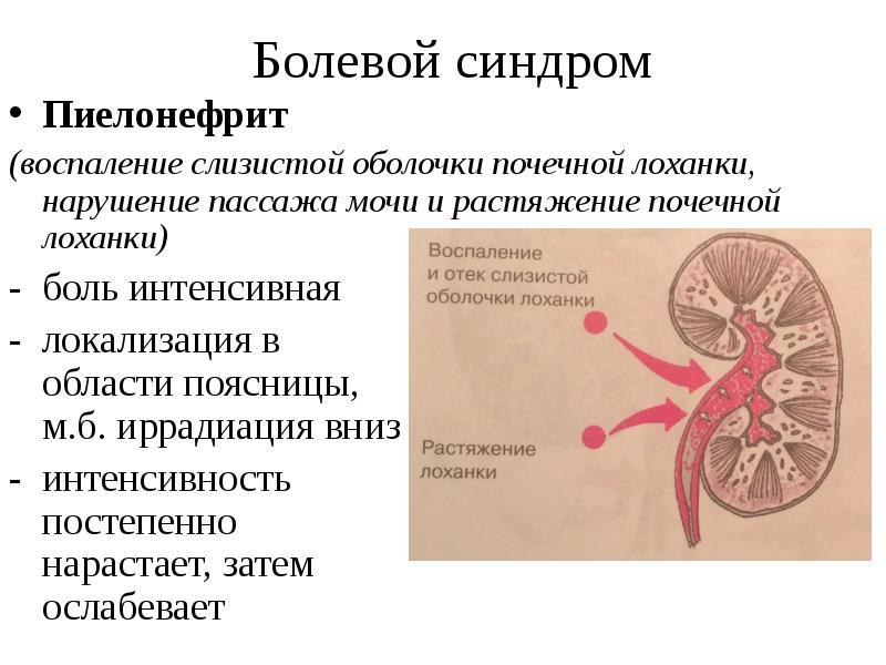 Болезнь почек пиелонефрит лечение