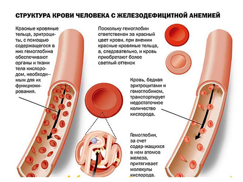 Признаком Железодефицитной Анемии В Крови Будут